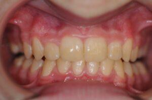 eksempler på tannbehandlinger