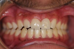 Eksempler av tannbehandlinger